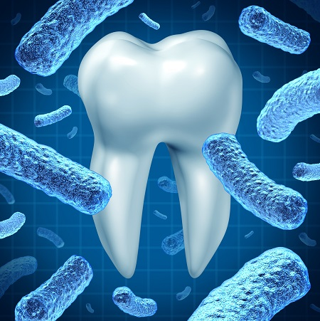 Dental hygiene as an oral health symbol with a single molar and a group of three dimensional bacteria causing tooth disease destroying enamel resulting in cavities and gum disease on a white background.