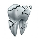 Broken tooth dental symbol and toothache dentistry concept as a single cracked damaged molar on an isolated white background.
