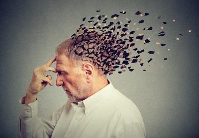 Memory loss due to dementia. Senior man losing parts of head  as symbol of decreased mind function.